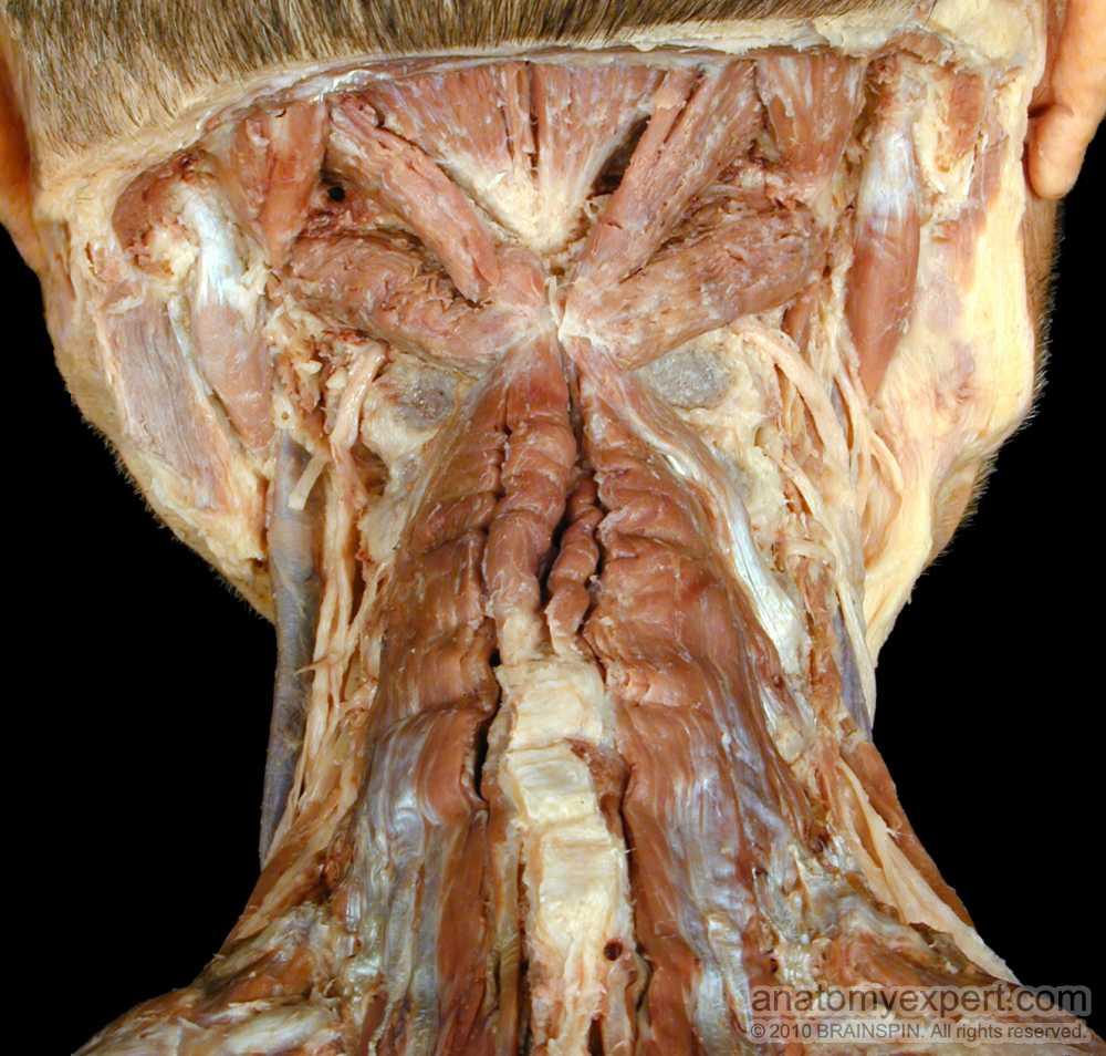 anatomyEXPERT - Obliquus capitis inferior - Structure Detail Obliquus Capitis Inferior